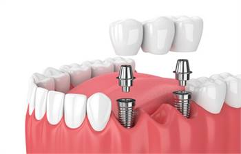 Is A Dental Bridge A Suitable Solution For Tooth Replacement?